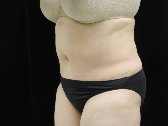 Tummy Tuck Gallery - Patient 39244342 - Image 6