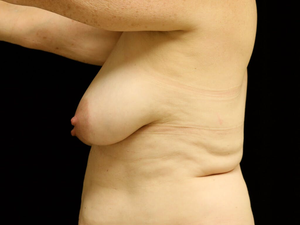 Vertical and Inverted T Breast Lift Gallery - Patient 39244341 - Image 5