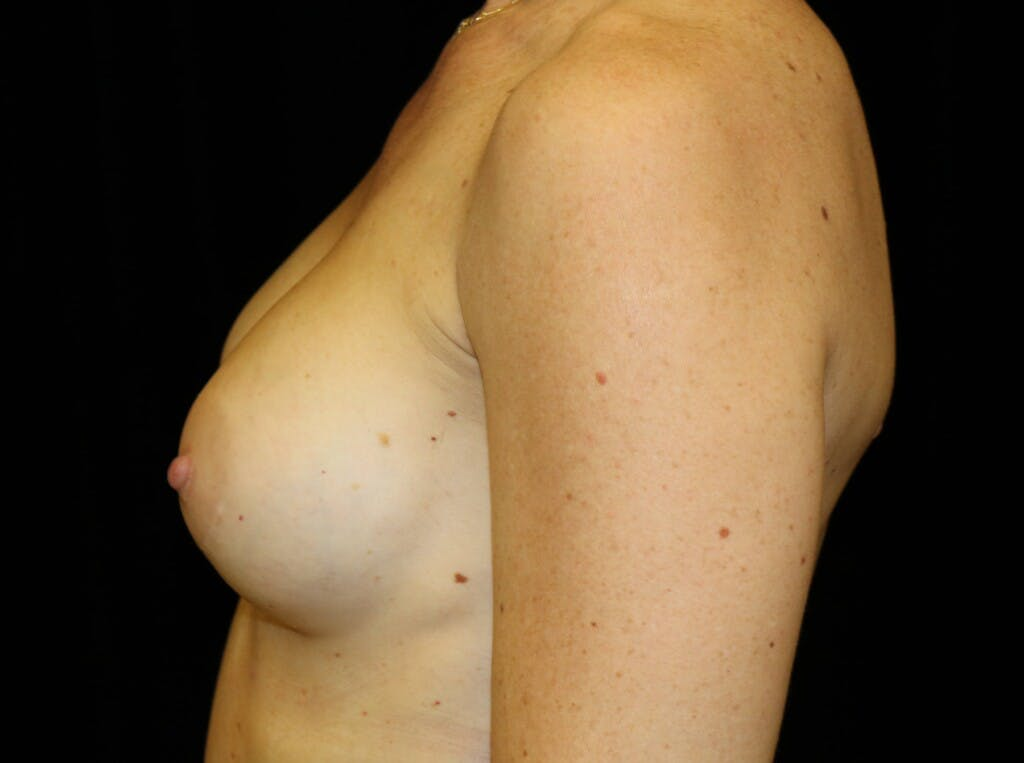 Breast Augmentation Gallery - Patient 39244340 - Image 10