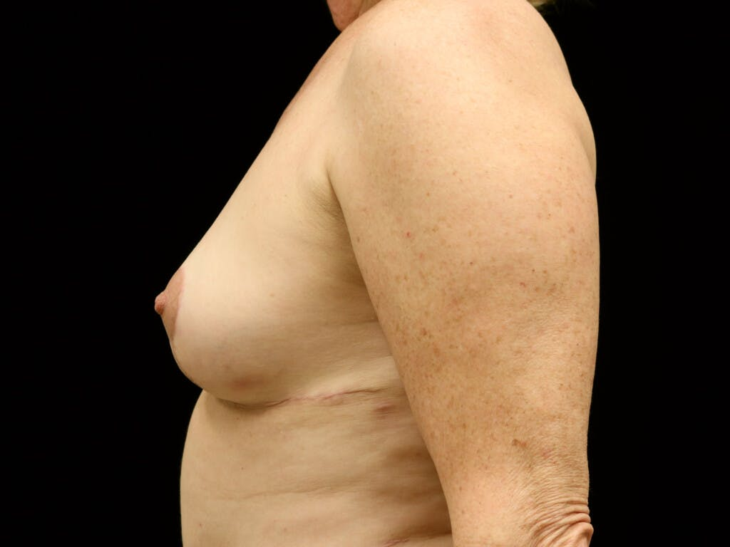 Vertical and Inverted T Breast Lift Gallery - Patient 39244341 - Image 6
