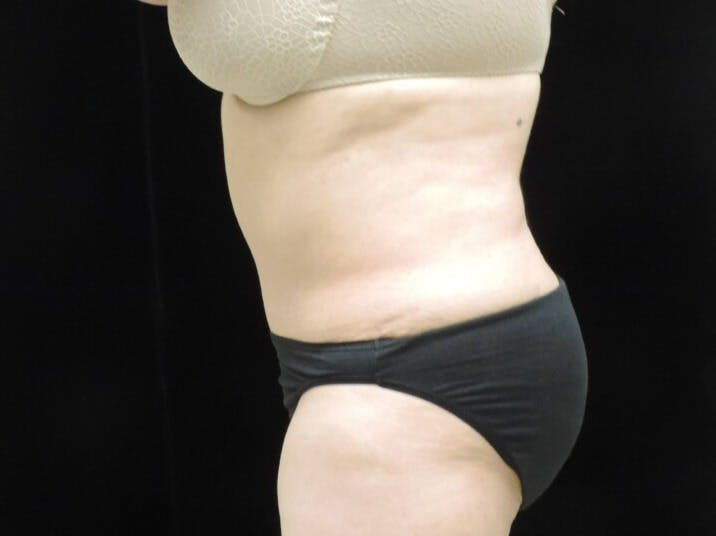 Tummy Tuck Gallery - Patient 39244342 - Image 8