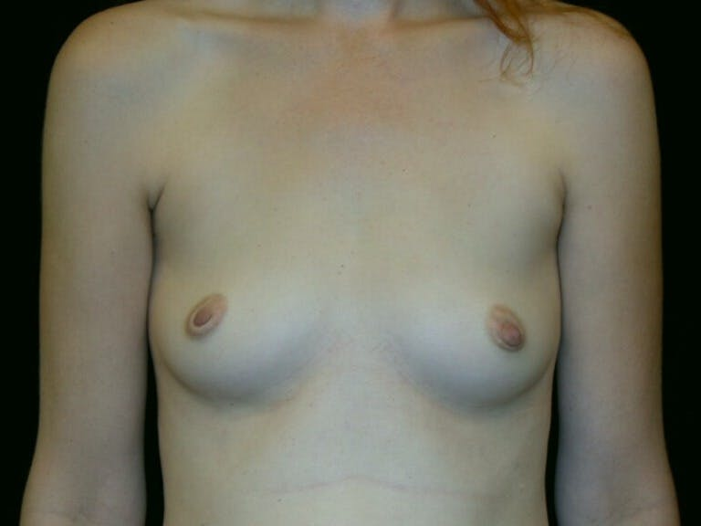 Breast Augmentation Gallery - Patient 39244343 - Image 1