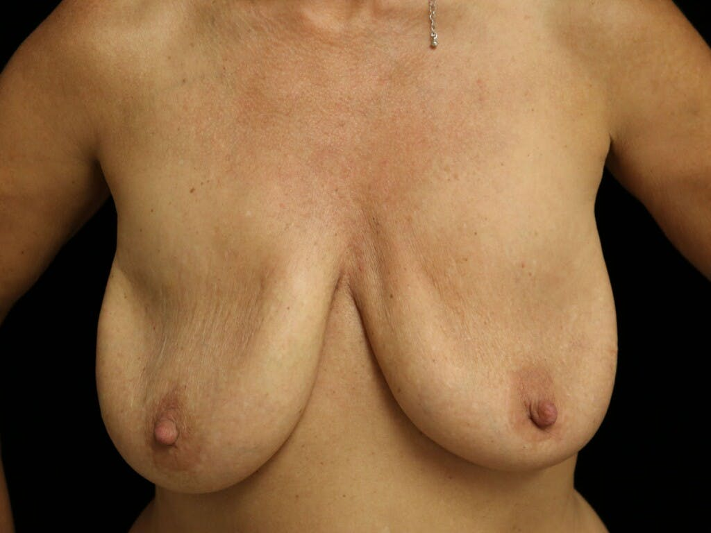 Vertical and Inverted T Breast Lift Gallery - Patient 39244345 - Image 1