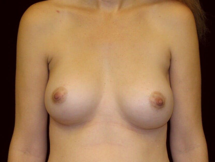 Breast Augmentation Gallery - Patient 39244343 - Image 2
