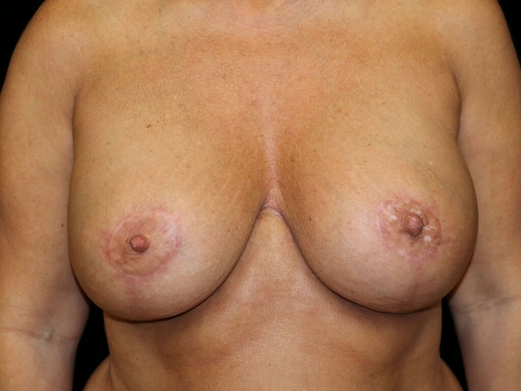 Vertical and Inverted T Breast Lift Gallery - Patient 39244345 - Image 2