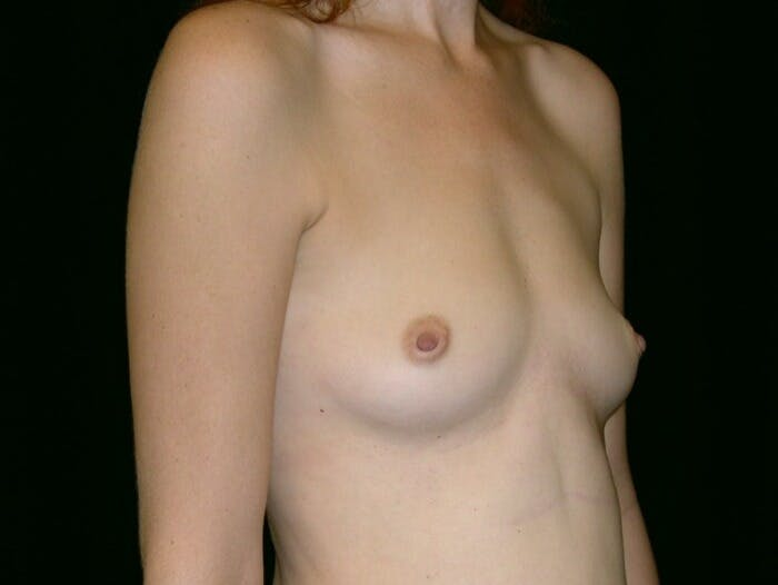 Breast Augmentation Gallery - Patient 39244343 - Image 3