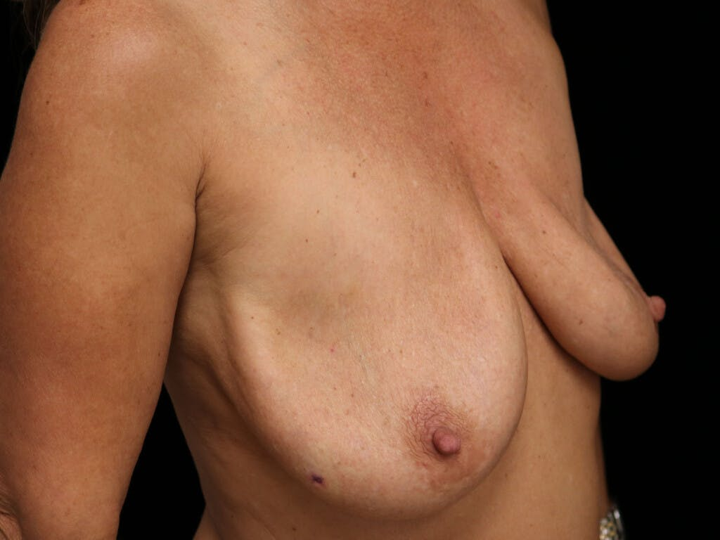 Vertical and Inverted T Breast Lift Gallery - Patient 39244345 - Image 3
