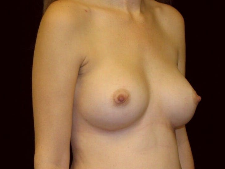 Breast Augmentation Gallery - Patient 39244343 - Image 4