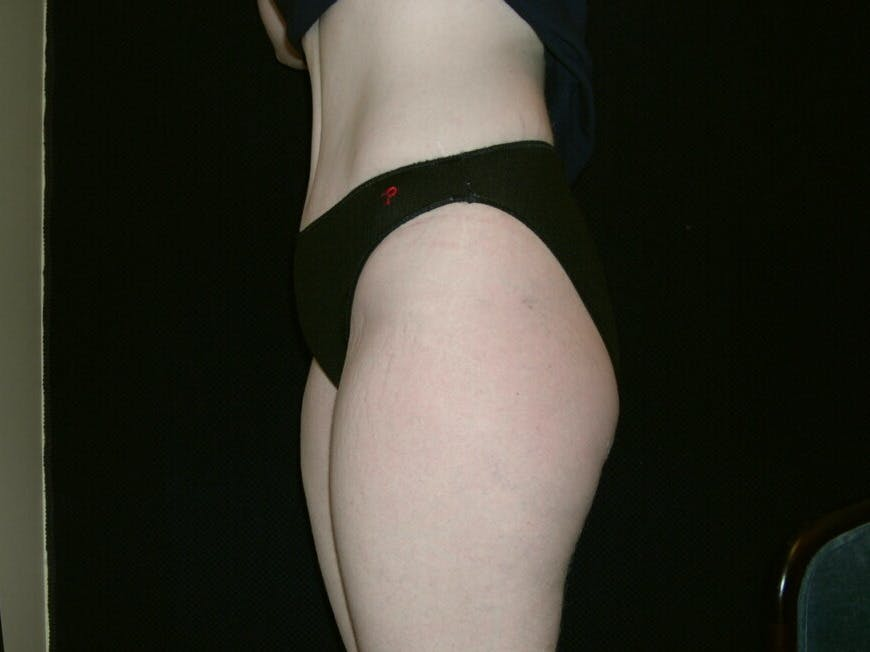 Tummy Tuck Gallery - Patient 39244346 - Image 4