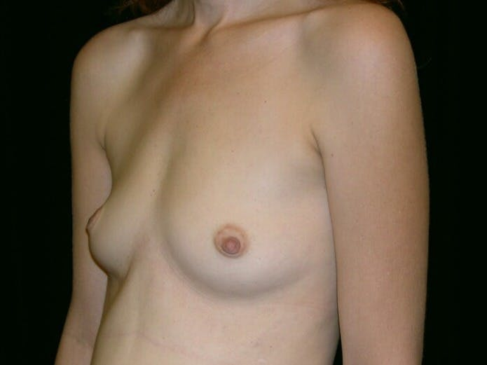 Breast Augmentation Gallery - Patient 39244343 - Image 5