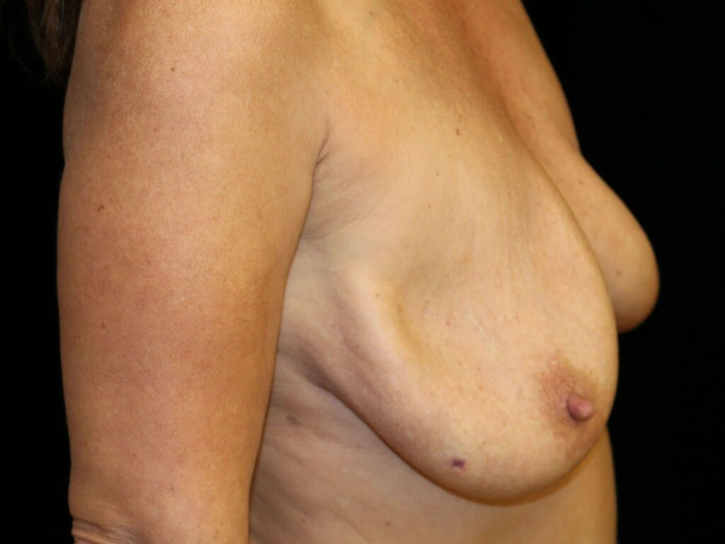 Vertical and Inverted T Breast Lift Gallery - Patient 39244345 - Image 5