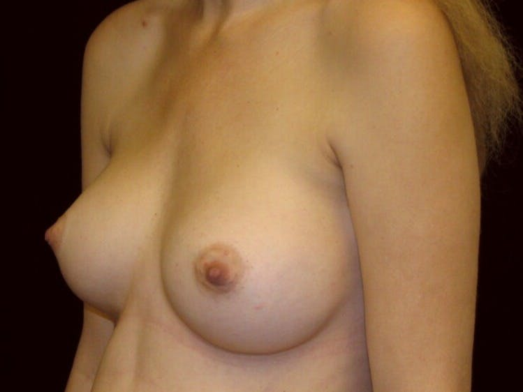 Breast Augmentation Gallery - Patient 39244343 - Image 6