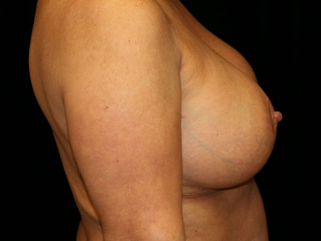 Vertical and Inverted T Breast Lift Gallery - Patient 39244345 - Image 6