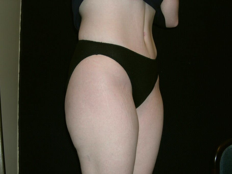 Tummy Tuck Gallery - Patient 39244346 - Image 6