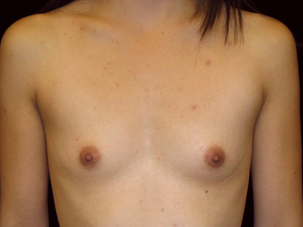 Breast Augmentation Gallery - Patient 39244350 - Image 1