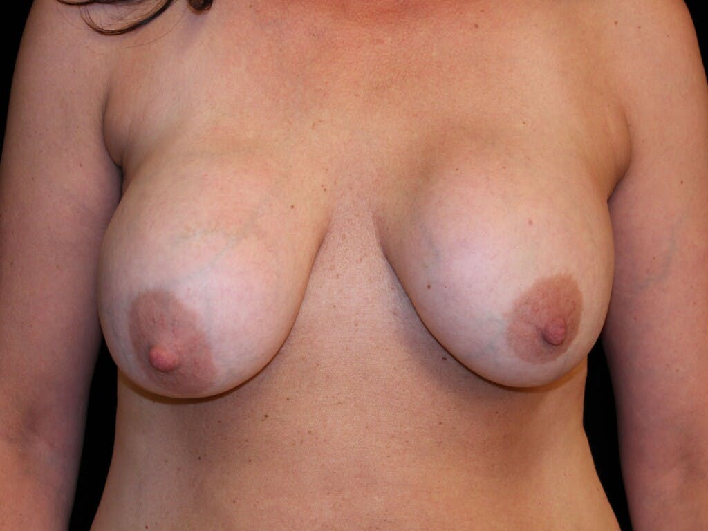 Vertical and Inverted T Breast Lift Gallery - Patient 39244349 - Image 1
