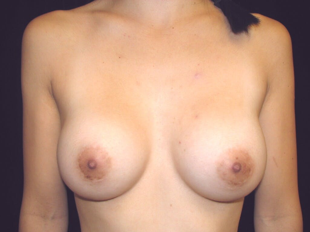Breast Augmentation Gallery - Patient 39244350 - Image 2
