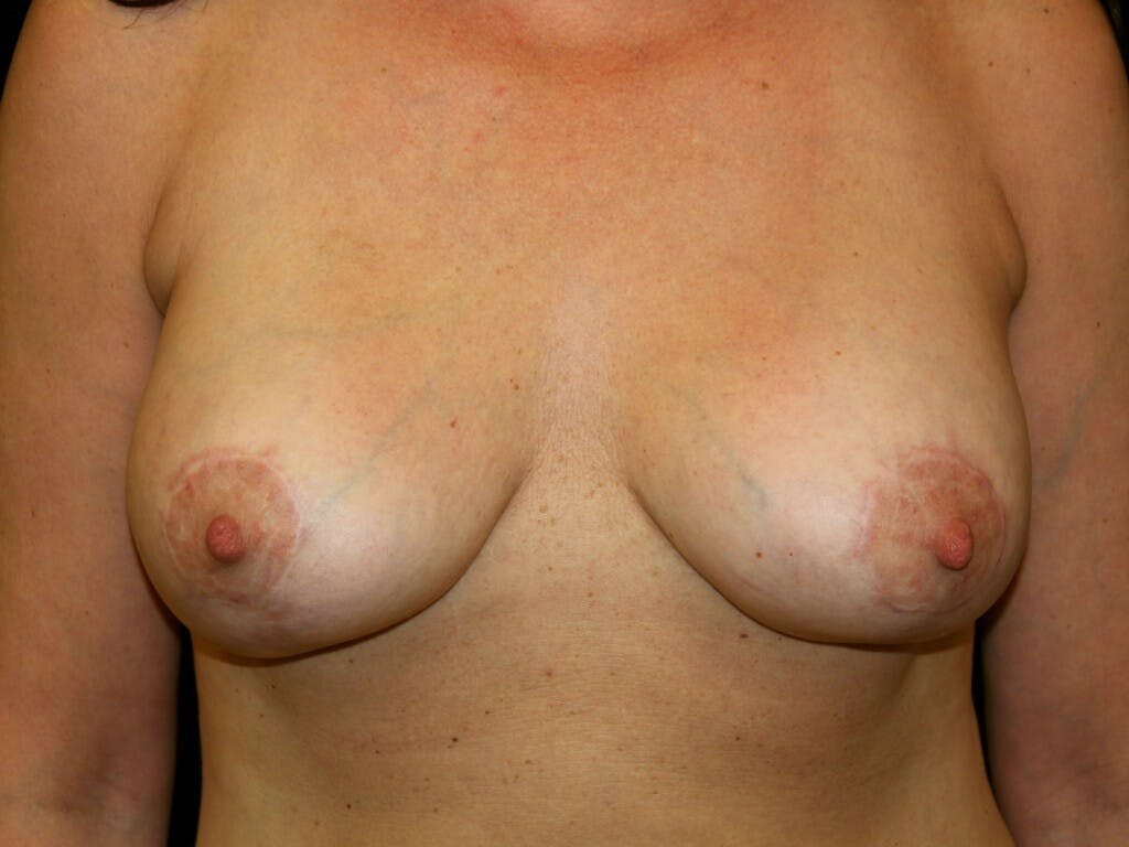 Vertical and Inverted T Breast Lift Gallery - Patient 39244349 - Image 2