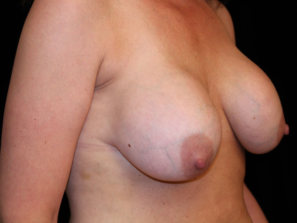 Vertical and Inverted T Breast Lift Gallery - Patient 39244349 - Image 3