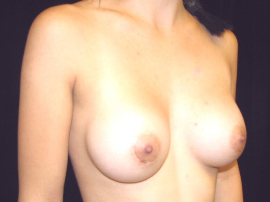 Breast Augmentation Gallery - Patient 39244350 - Image 4