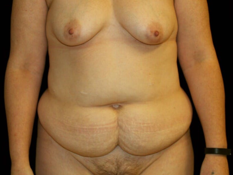 Tummy Tuck Gallery - Patient 39244351 - Image 1