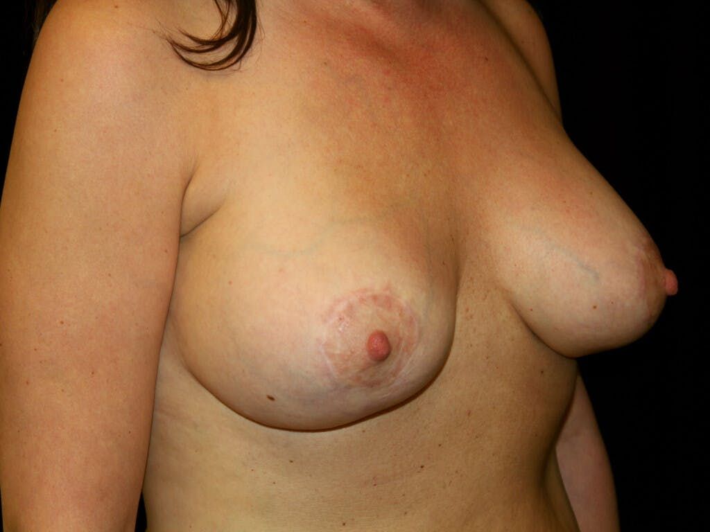 Vertical and Inverted T Breast Lift Gallery - Patient 39244349 - Image 4