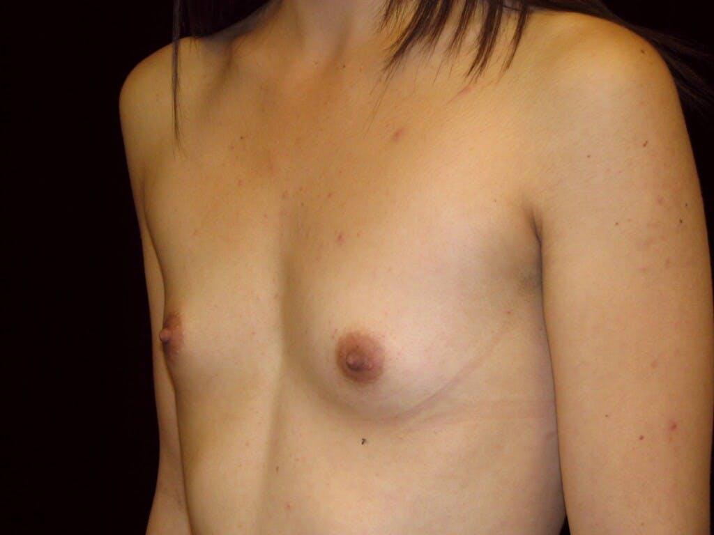 Breast Augmentation Gallery - Patient 39244350 - Image 5