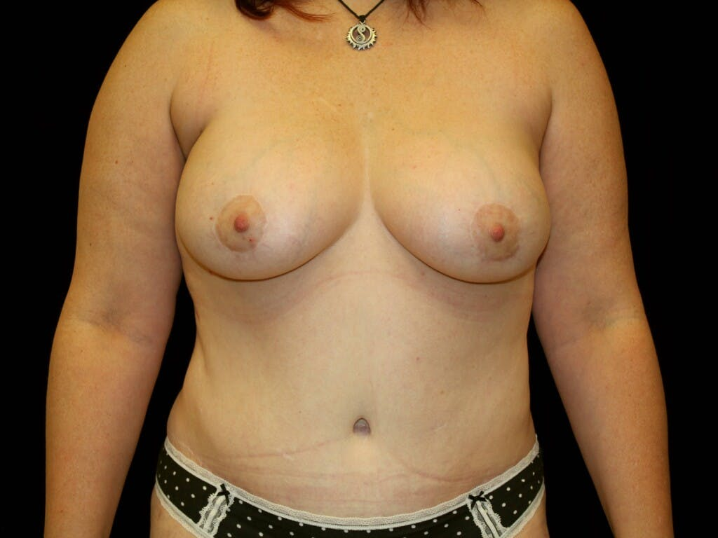 Tummy Tuck Gallery - Patient 39244351 - Image 2
