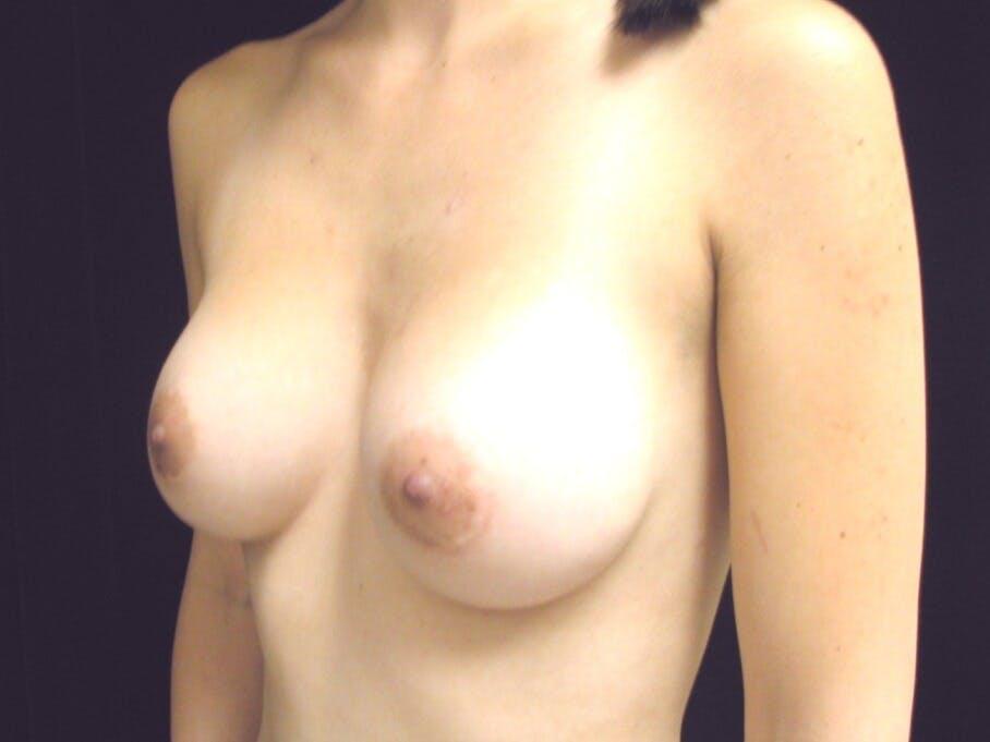 Breast Augmentation Gallery - Patient 39244350 - Image 6