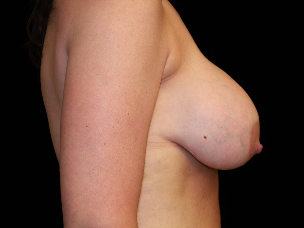 Vertical and Inverted T Breast Lift Gallery - Patient 39244349 - Image 5