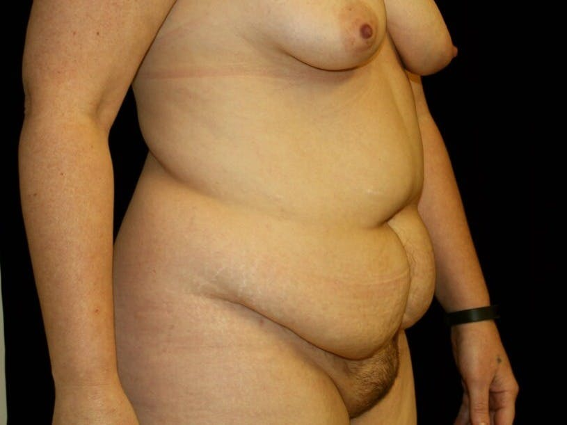 Tummy Tuck Gallery - Patient 39244351 - Image 3