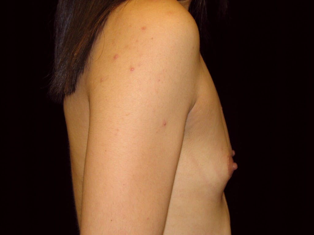 Breast Augmentation Gallery - Patient 39244350 - Image 7