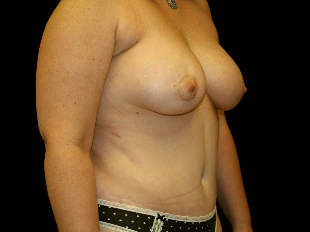 Tummy Tuck Gallery - Patient 39244351 - Image 4