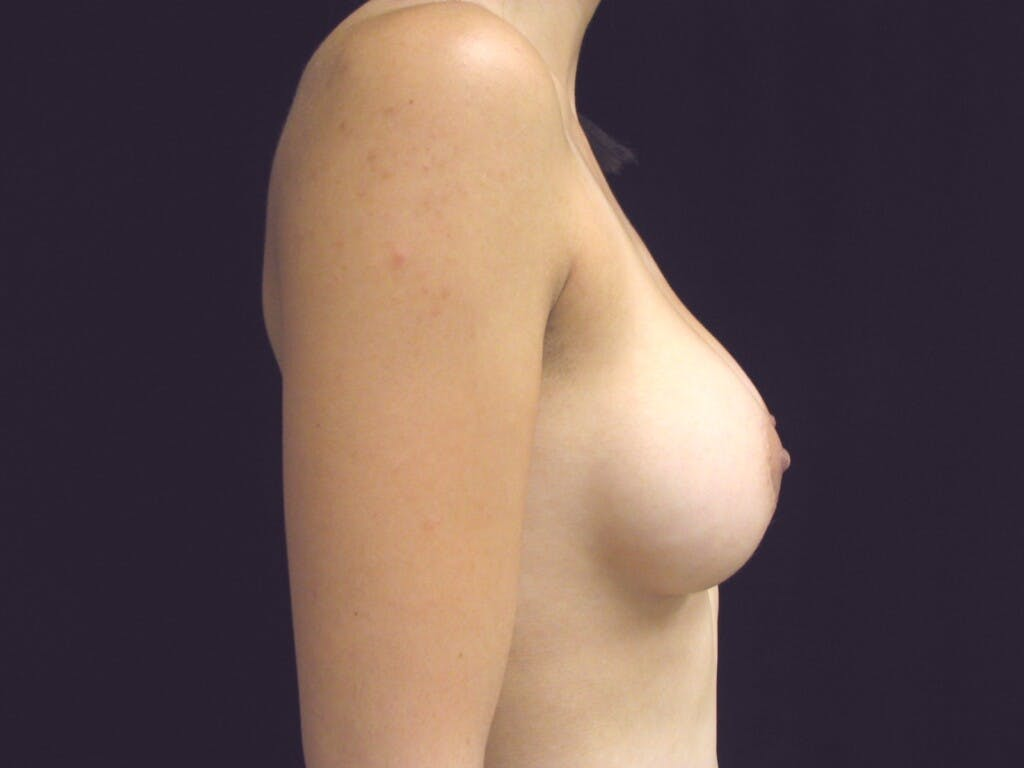 Breast Augmentation Gallery - Patient 39244350 - Image 8