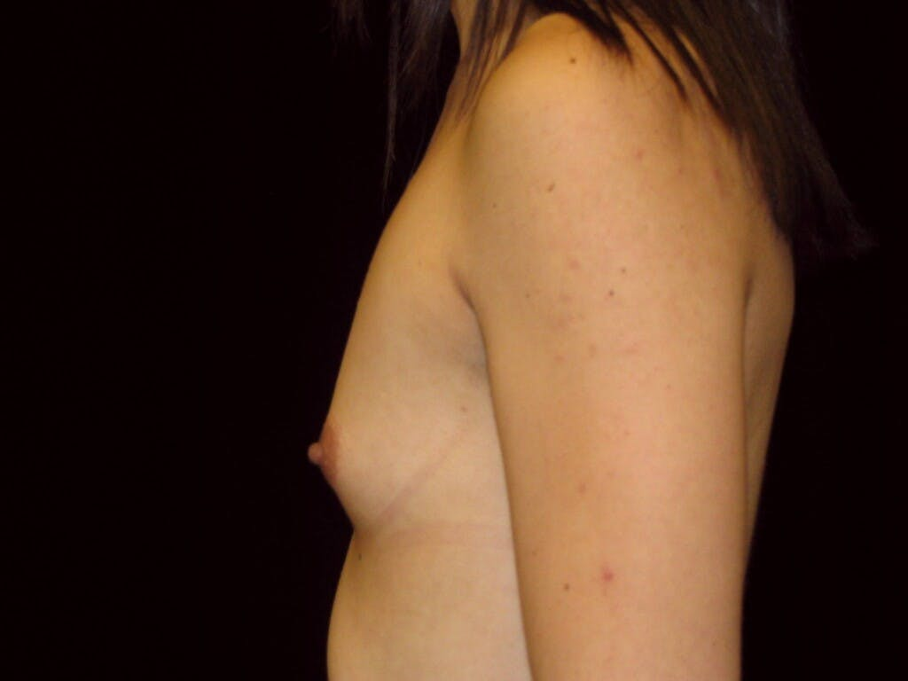 Breast Augmentation Gallery - Patient 39244350 - Image 9