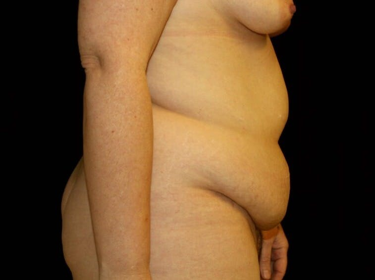 Tummy Tuck Gallery - Patient 39244351 - Image 5