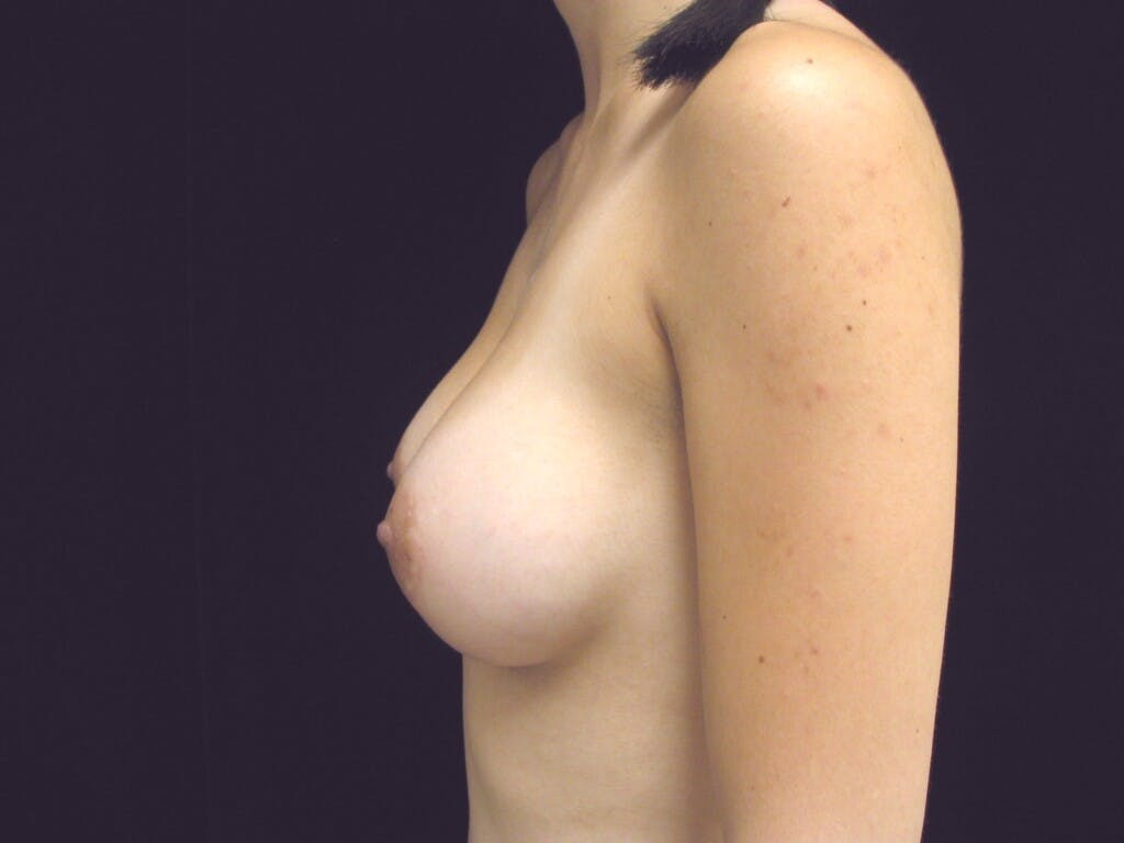 Breast Augmentation Gallery - Patient 39244350 - Image 10