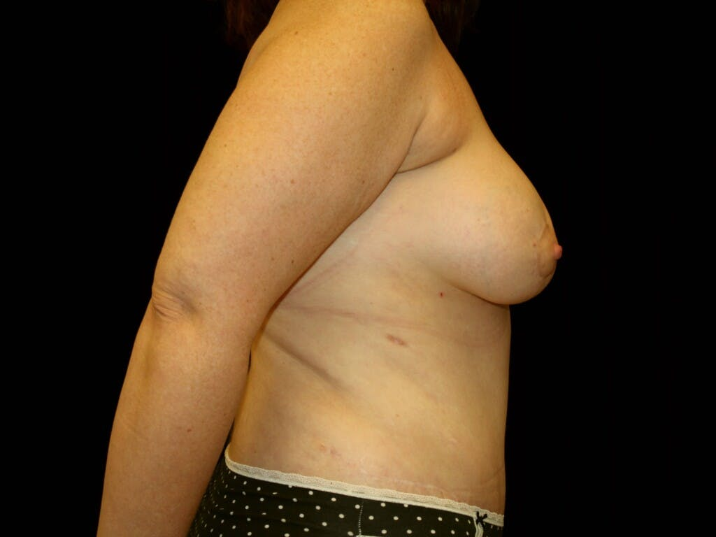 Tummy Tuck Gallery - Patient 39244351 - Image 6