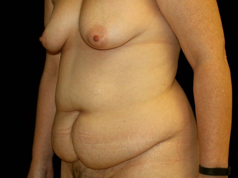 Tummy Tuck Gallery - Patient 39244351 - Image 7