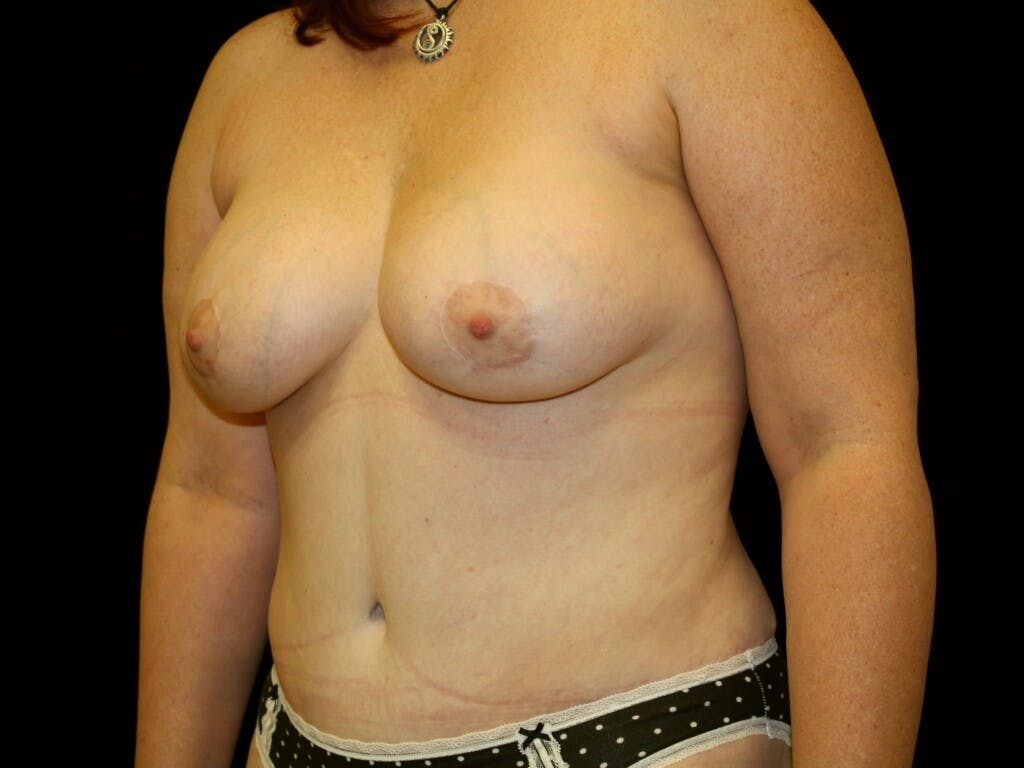 Tummy Tuck Gallery - Patient 39244351 - Image 8