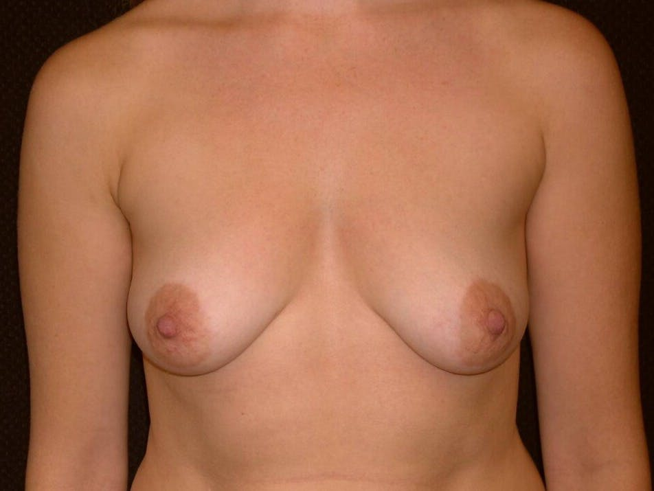 Breast Augmentation Gallery - Patient 39244356 - Image 1
