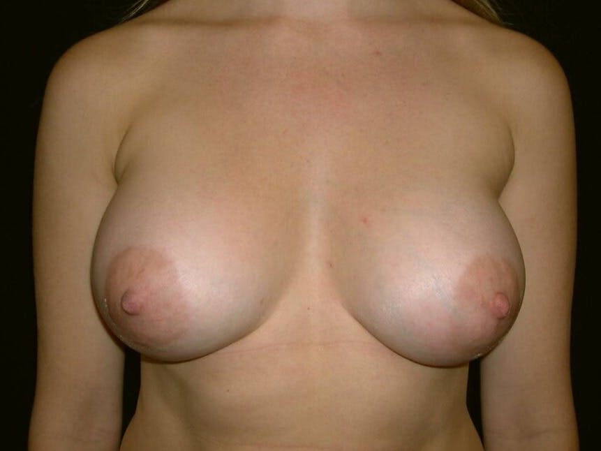 Breast Augmentation Gallery - Patient 39244356 - Image 2