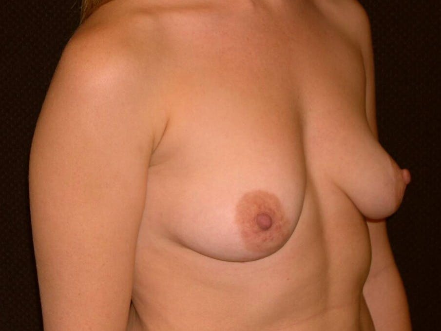 Breast Augmentation Gallery - Patient 39244356 - Image 3