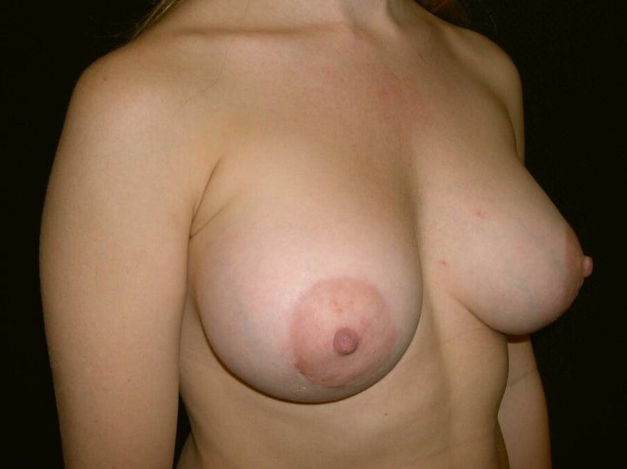 Breast Augmentation Gallery - Patient 39244356 - Image 4