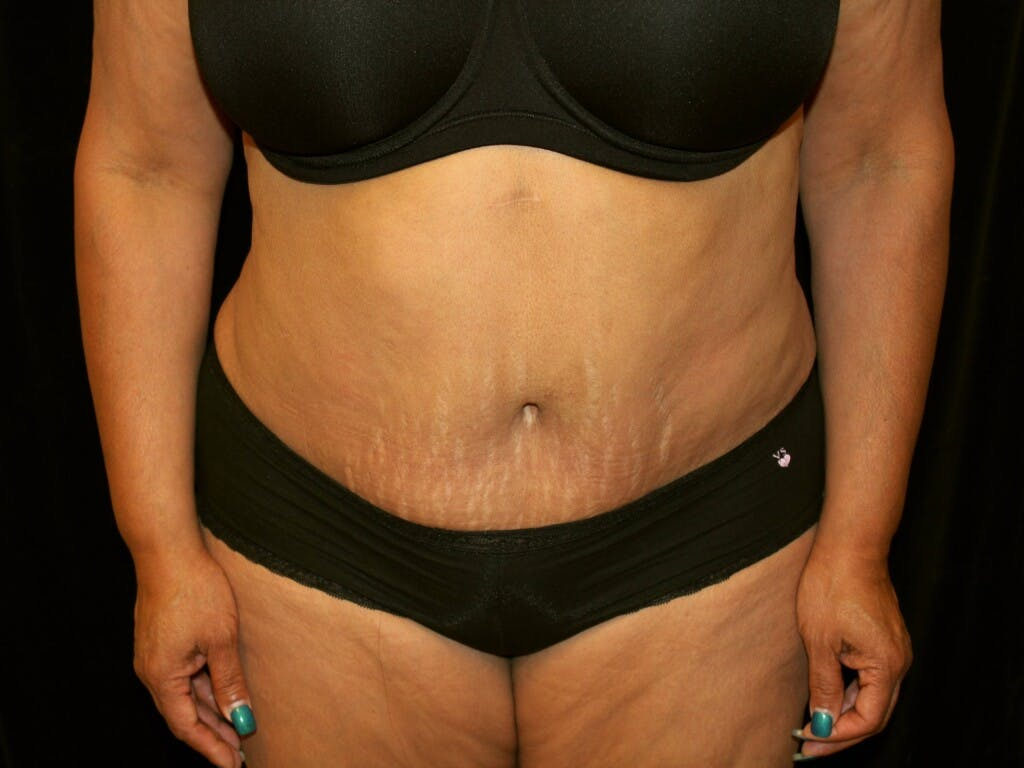 Tummy Tuck Gallery - Patient 39244359 - Image 2