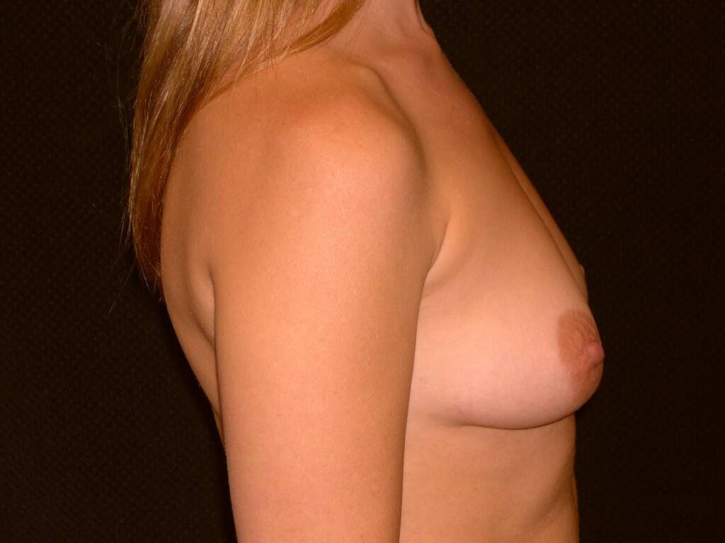 Breast Augmentation Gallery - Patient 39244356 - Image 5
