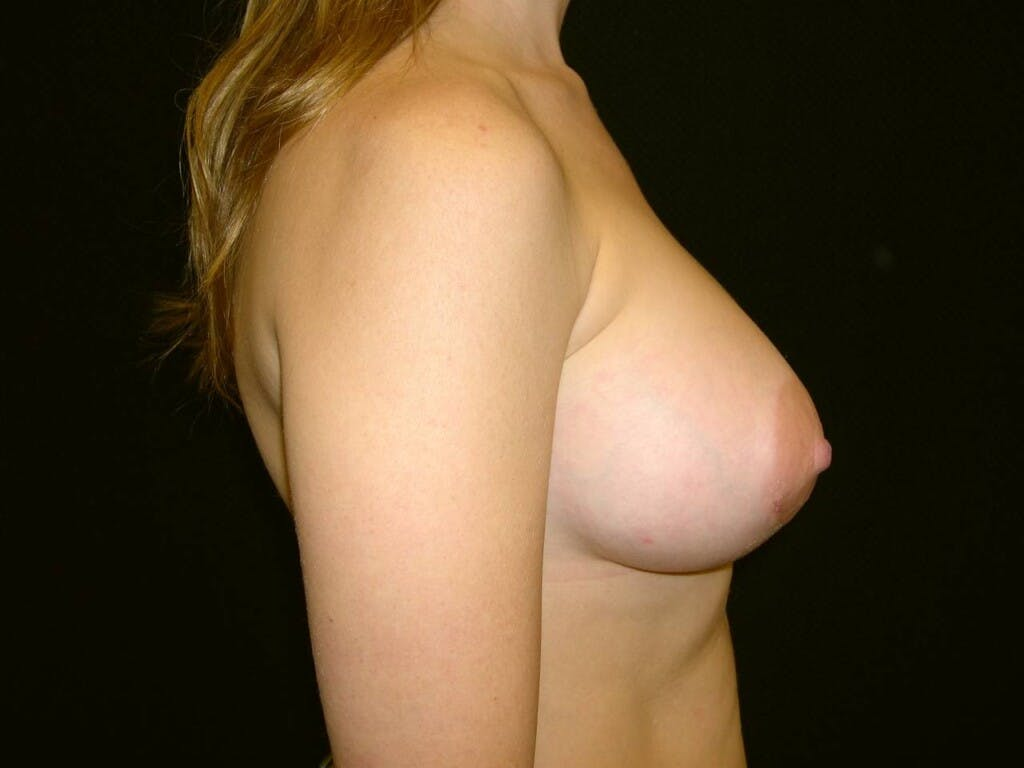 Breast Augmentation Gallery - Patient 39244356 - Image 6