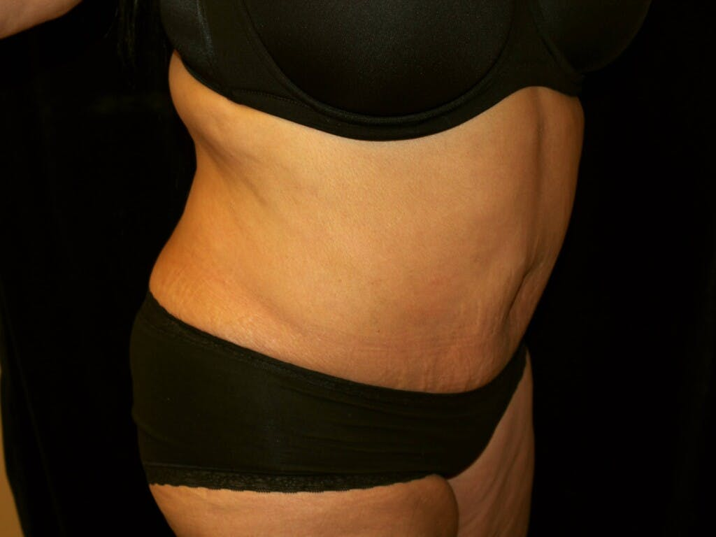 Tummy Tuck Gallery - Patient 39244359 - Image 4