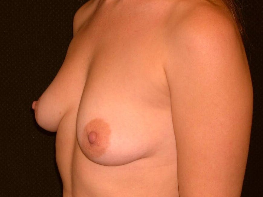Breast Augmentation Gallery - Patient 39244356 - Image 7