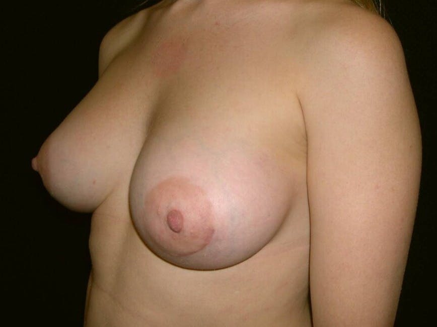 Breast Augmentation Gallery - Patient 39244356 - Image 8